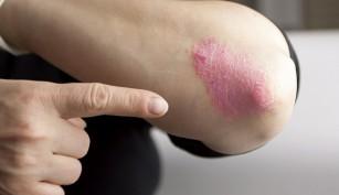 Ratgeber: Schuppenflechte als chronische Krankheit anerkennen lassen